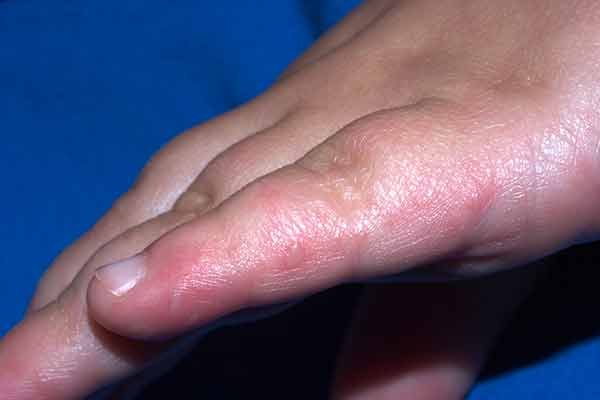 Hand Rashes - American Osteopathic College of Dermatology